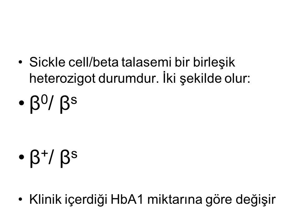 Sickle cell/beta talasemi bir birleşik heterozigot durumdur. İki şekilde olur: β 0 / β s β + / β s Klinik içerdiği HbA1 miktarına göre değişir