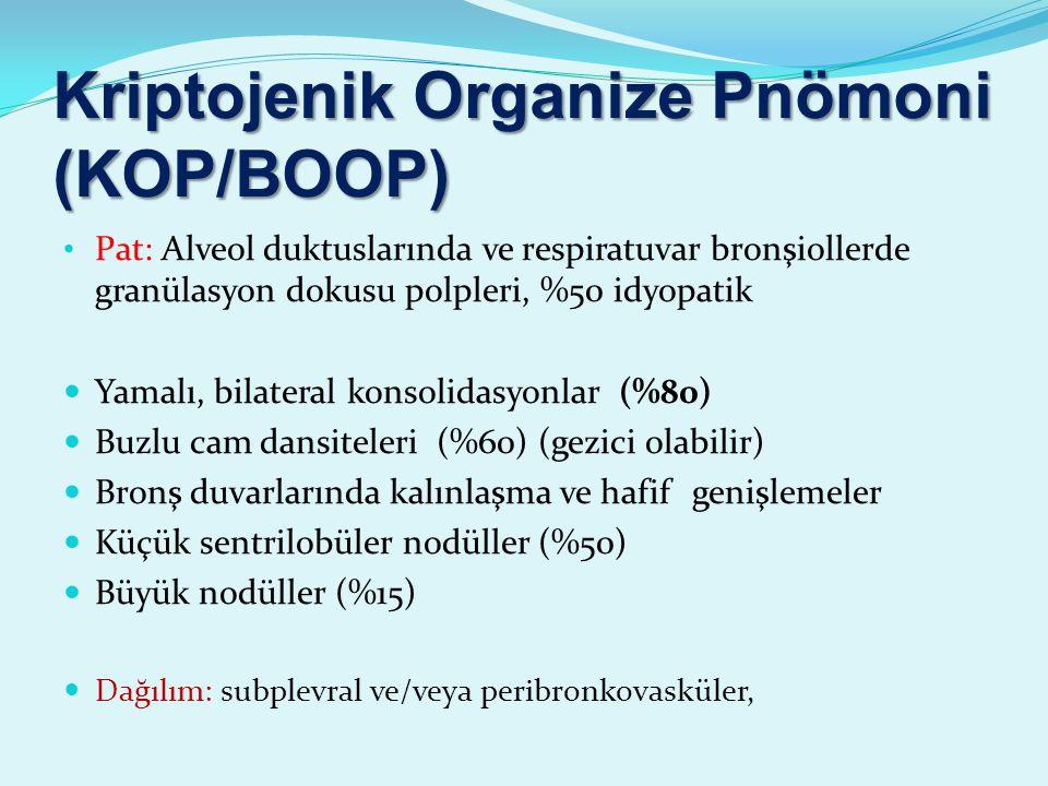 Kriptojenik Organize Pnömoni (KOP/BOOP) Pat: Alveol duktuslarında ve respiratuvar bronşiollerde granülasyon dokusu polpleri, %50 idyopatik Yamalı, bilateral konsolidasyonlar (%80) Buzlu cam dansiteleri (%60) (gezici olabilir) Bronş duvarlarında kalınlaşma ve hafif genişlemeler Küçük sentrilobüler nodüller (%50) Büyük nodüller (%15) Dağılım: subplevral ve/veya peribronkovasküler,