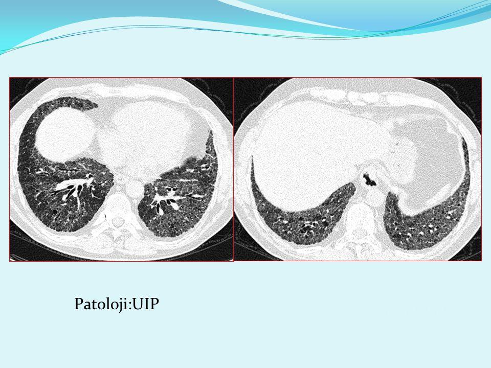 3259230 mustafakırat Patoloji:UIP