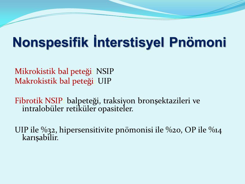 Nonspesifik İnterstisyel Pnömoni Mikrokistik bal peteği: NSIP Makrokistik bal peteği: UIP Fibrotik NSIP: balpeteği, traksiyon bronşektazileri ve intralobüler retiküler opasiteler.