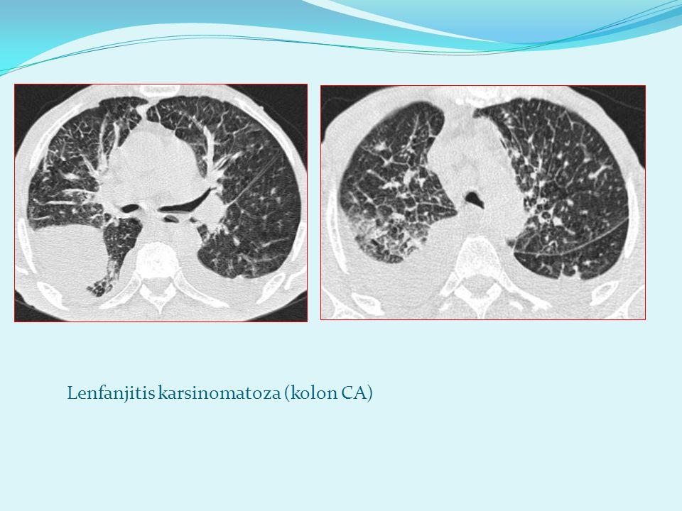 Lenfanjitis karsinomatoza (kolon CA)