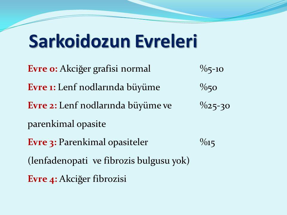 Sarkoidozun Evreleri Evre 0: Akciğer grafisi normal %5-10 Evre 1: Lenf nodlarında büyüme %50 Evre 2: Lenf nodlarında büyüme ve %25-30 parenkimal opasite Evre 3: Parenkimal opasiteler %15 (lenfadenopati ve fibrozis bulgusu yok) Evre 4: Akciğer fibrozisi