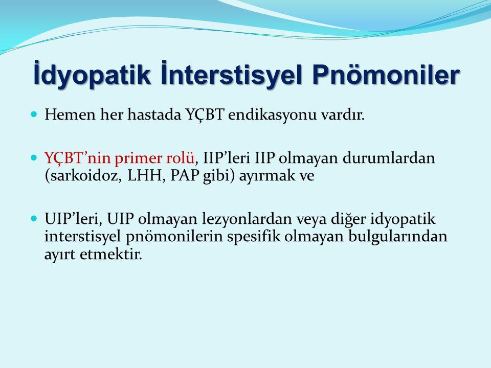 İdyopatik İnterstisyel Pnömoniler Hemen her hastada YÇBT endikasyonu vardır.