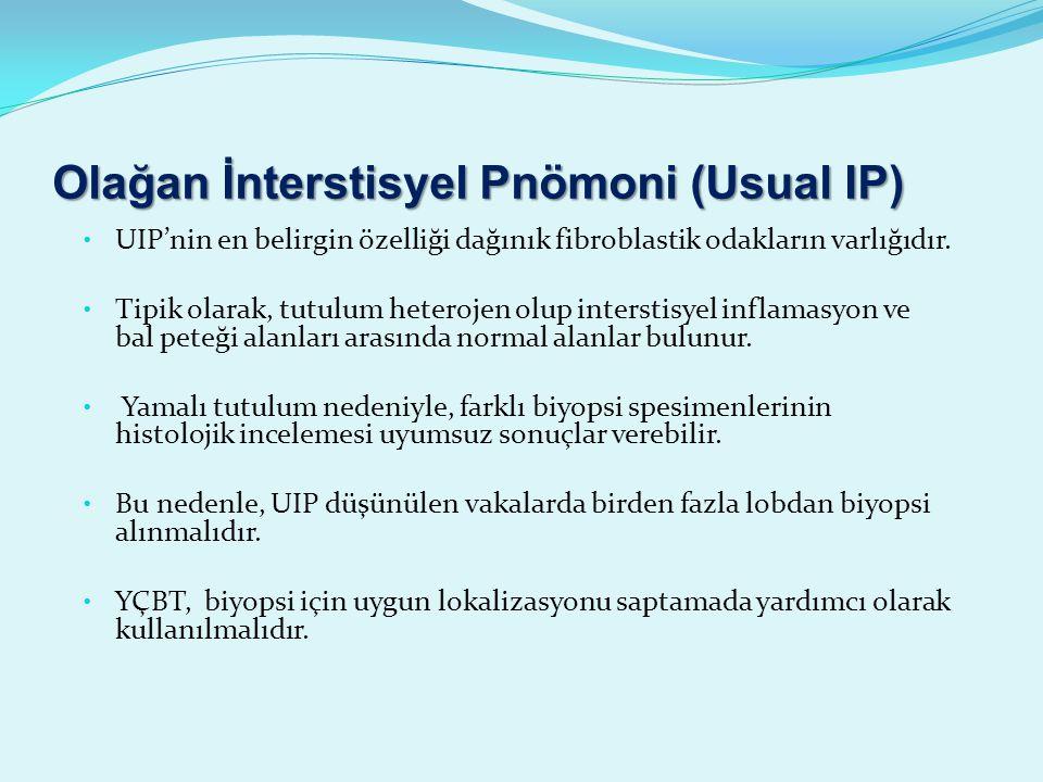 Olağan İnterstisyel Pnömoni (Usual IP) UIP'nin en belirgin özelliği dağınık fibroblastik odakların varlığıdır.