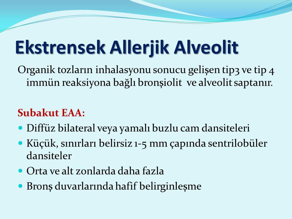 Ekstrensek Allerjik Alveolit Organik tozların inhalasyonu sonucu gelişen tip3 ve tip 4 immün reaksiyona bağlı bronşiolit ve alveolit saptanır.
