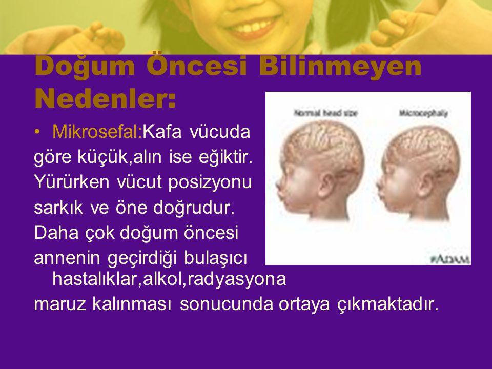 Doğum Öncesi Bilinmeyen Nedenler: Mikrosefal:Kafa vücuda göre küçük,alın ise eğiktir. Yürürken vücut posizyonu sarkık ve öne doğrudur. Daha çok doğum