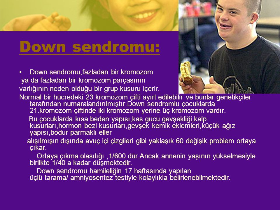 Down sendromu: Down sendromu,fazladan bir kromozom ya da fazladan bir kromozom parçasının varlığının neden olduğu bir grup kusuru içerir. Normal bir h