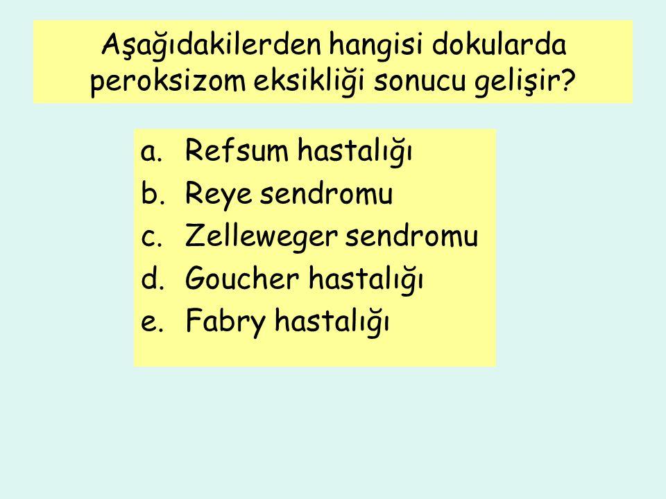 Aşağıdakilerden hangisi dokularda peroksizom eksikliği sonucu gelişir? a.Refsum hastalığı b.Reye sendromu c.Zelleweger sendromu d.Goucher hastalığı e.