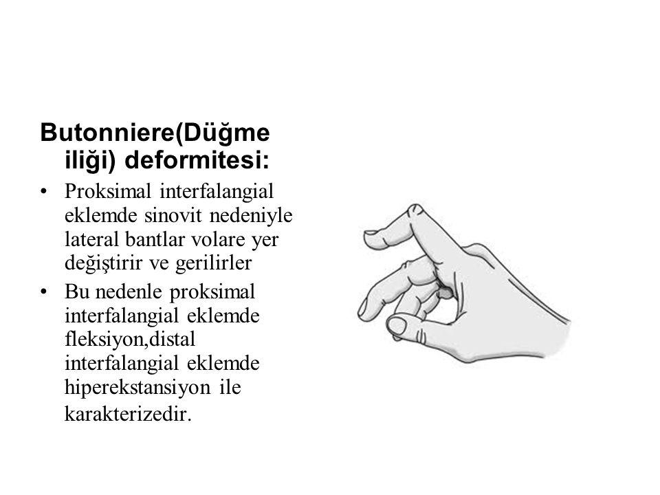 Butonniere(Düğme iliği) deformitesi: Proksimal interfalangial eklemde sinovit nedeniyle lateral bantlar volare yer değiştirir ve gerilirler Bu nedenle