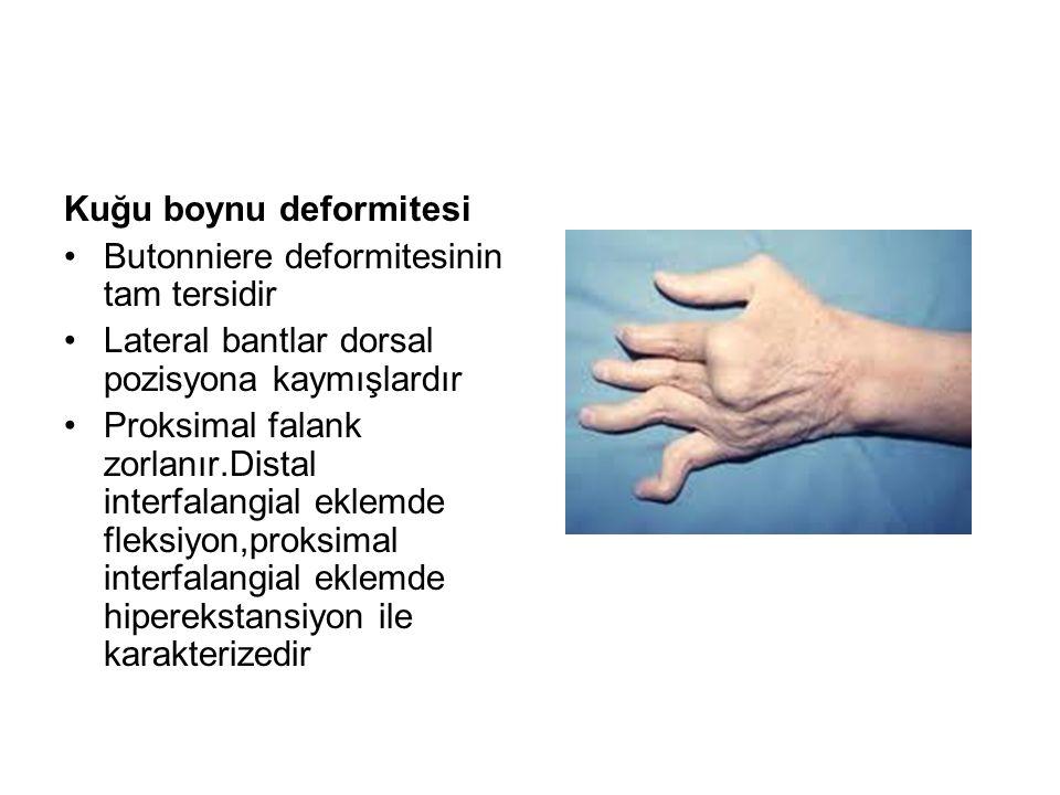 Kuğu boynu deformitesi Butonniere deformitesinin tam tersidir Lateral bantlar dorsal pozisyona kaymışlardır Proksimal falank zorlanır.Distal interfala