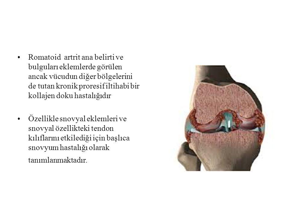 Romatoid artrit ana belirti ve bulguları eklemlerde görülen ancak vücudun diğer bölgelerini de tutan kronik proresif iltihabi bir kollajen doku hastal