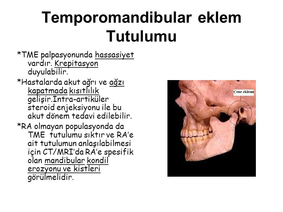 Temporomandibular eklem Tutulumu *TME palpasyonunda hassasiyet vardır. Krepitasyon duyulabilir. *Hastalarda akut ağrı ve ağzı kapatmada kısıtlılık gel