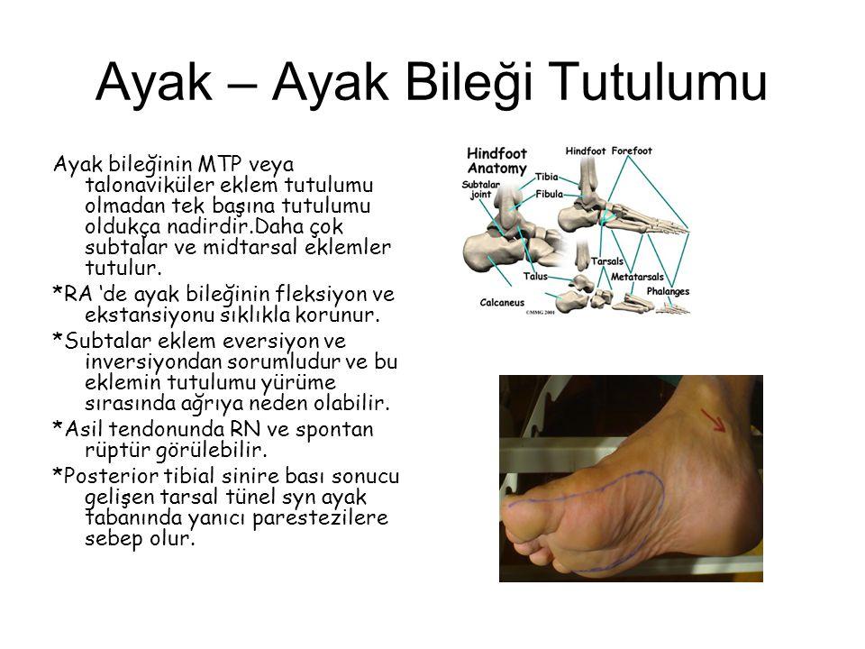 Ayak – Ayak Bileği Tutulumu Ayak bileğinin MTP veya talonaviküler eklem tutulumu olmadan tek başına tutulumu oldukça nadirdir.Daha çok subtalar ve mid