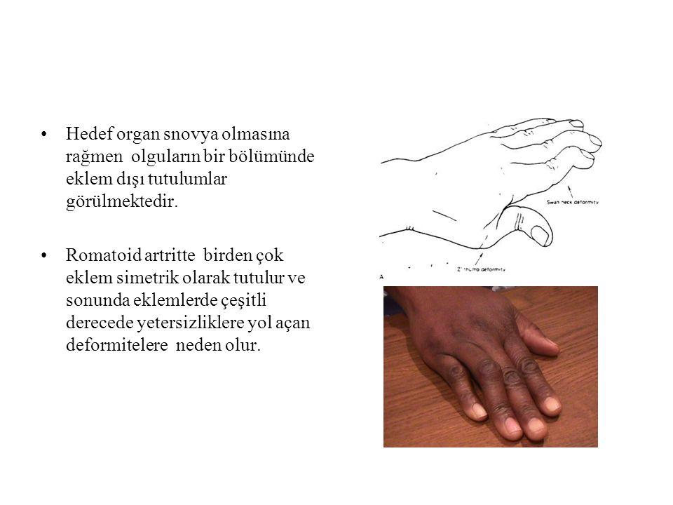 Hedef organ snovya olmasına rağmen olguların bir bölümünde eklem dışı tutulumlar görülmektedir. Romatoid artritte birden çok eklem simetrik olarak tut