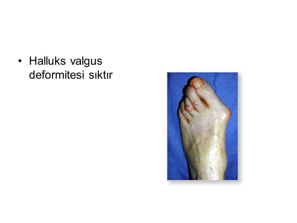 Halluks valgus deformitesi sıktır