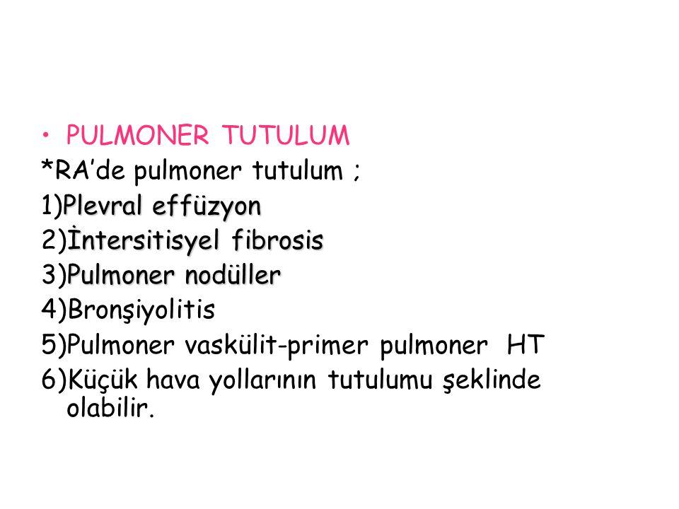 PULMONER TUTULUM *RA'de pulmoner tutulum ; Plevral effüzyon 1)Plevral effüzyon İntersitisyel fibrosis 2)İntersitisyel fibrosis Pulmoner nodüller 3)Pul