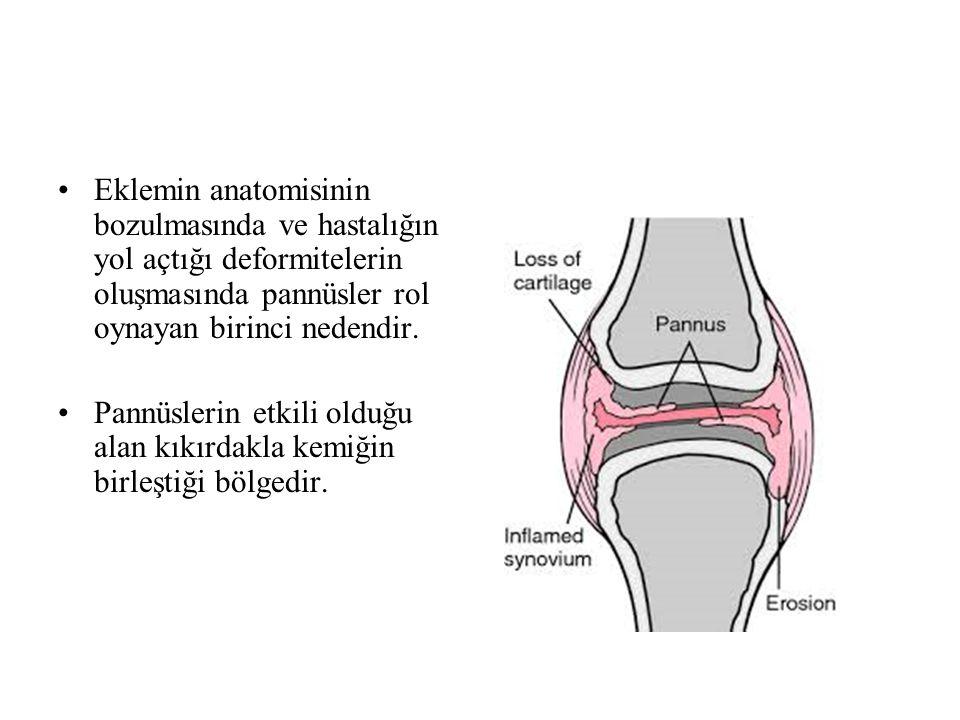 Ayak – Ayak Bileği Tutulumu Ayak bileğinin MTP veya talonaviküler eklem tutulumu olmadan tek başına tutulumu oldukça nadirdir.Daha çok subtalar ve midtarsal eklemler tutulur.