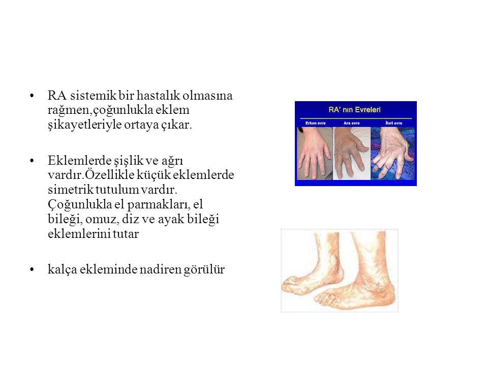MTF eklem tutulumu sıktır çekiç parmakMTP subluksasyonu gelişen hastalarda PIP dorsale kayar ve çekiç parmak gelişir.