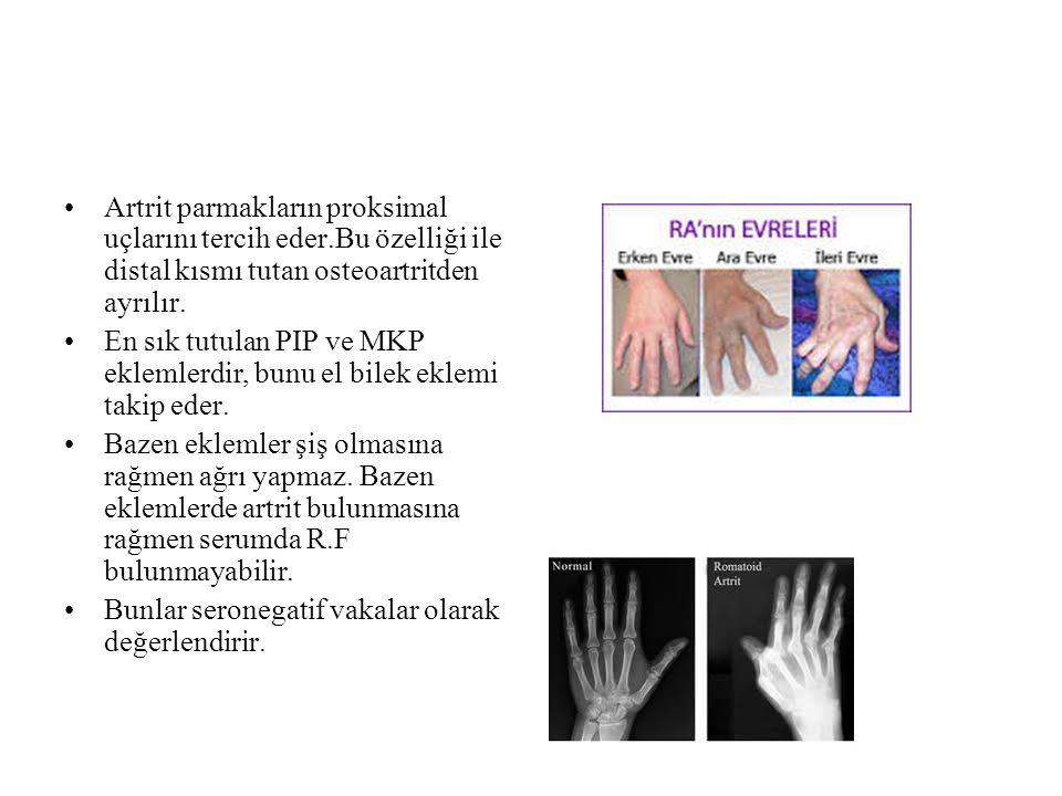 Artrit parmakların proksimal uçlarını tercih eder.Bu özelliği ile distal kısmı tutan osteoartritden ayrılır. En sık tutulan PIP ve MKP eklemlerdir, bu