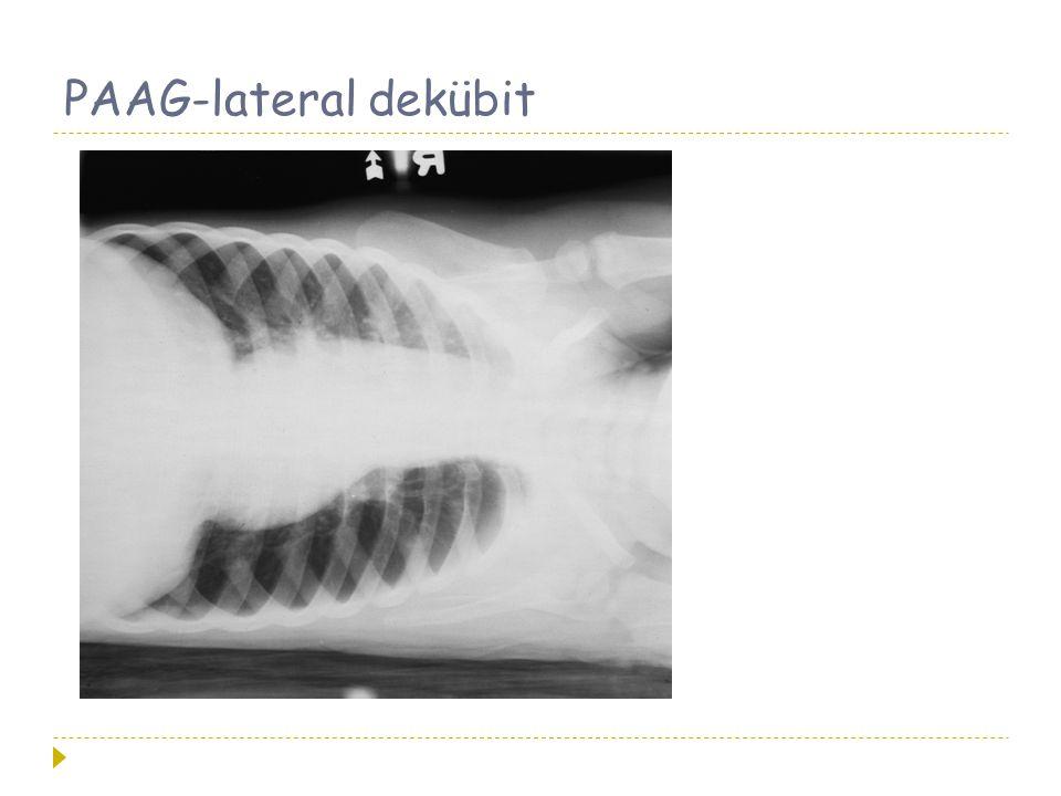 PAAG-lateral dekübit