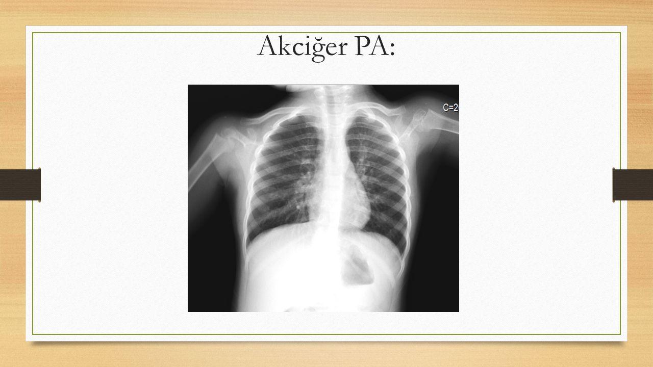Akciğer PA: