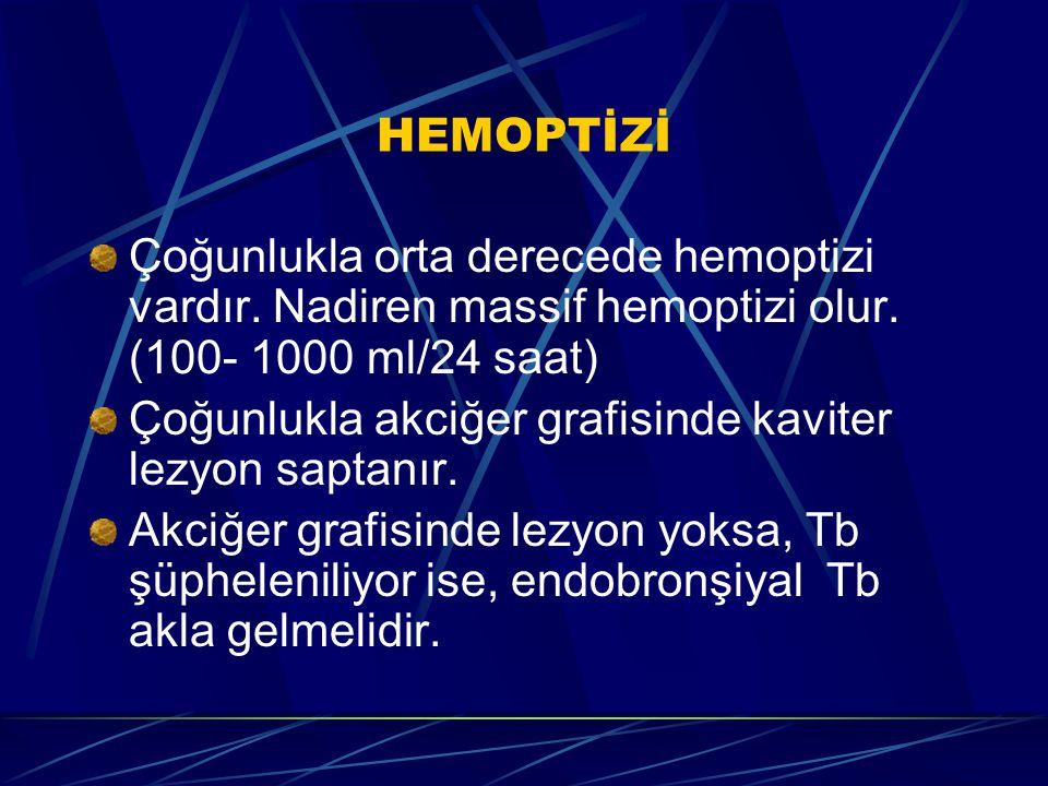 HEMOPTİZİ Çoğunlukla orta derecede hemoptizi vardır. Nadiren massif hemoptizi olur. (100- 1000 ml/24 saat) Çoğunlukla akciğer grafisinde kaviter lezyo