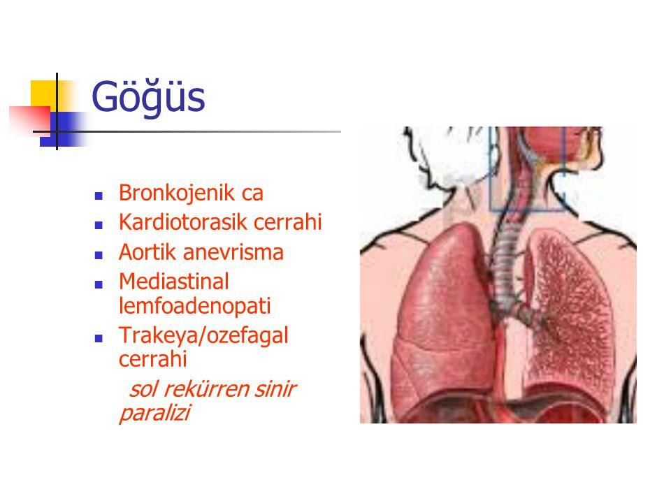 Göğüs Bronkojenik ca Kardiotorasik cerrahi Aortik anevrisma Mediastinal lemfoadenopati Trakeya/ozefagal cerrahi sol rekürren sinir paralizi