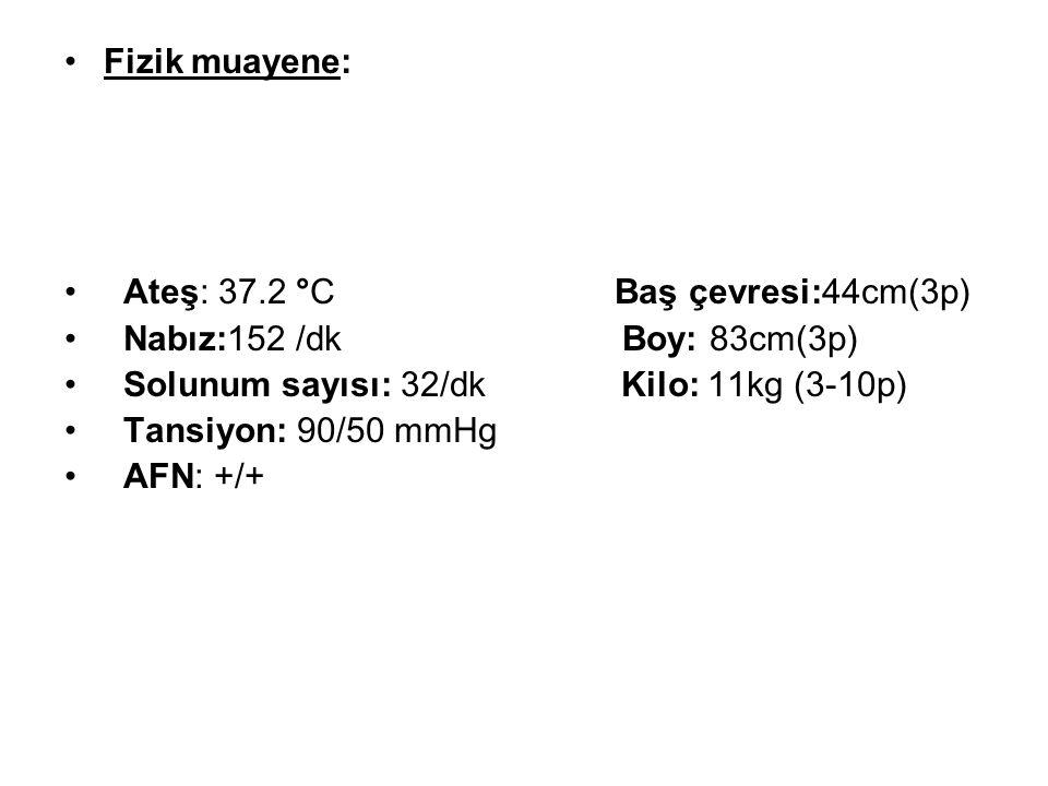Fizik muayene: Ateş: 37.2 °C Baş çevresi:44cm(3p) Nabız:152 /dk Boy: 83cm(3p) Solunum sayısı: 32/dk Kilo: 11kg (3-10p) Tansiyon: 90/50 mmHg AFN: +/+