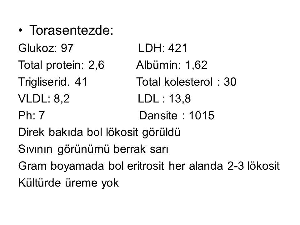 Torasentezde: Glukoz: 97 LDH: 421 Total protein: 2,6 Albümin: 1,62 Trigliserid.