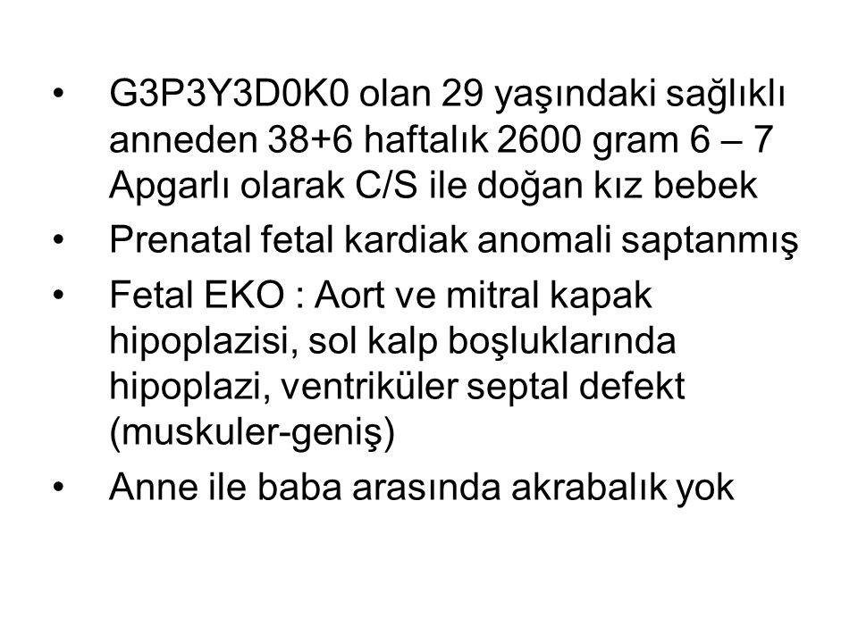 G3P3Y3D0K0 olan 29 yaşındaki sağlıklı anneden 38+6 haftalık 2600 gram 6 – 7 Apgarlı olarak C/S ile doğan kız bebek Prenatal fetal kardiak anomali saptanmış Fetal EKO : Aort ve mitral kapak hipoplazisi, sol kalp boşluklarında hipoplazi, ventriküler septal defekt (muskuler-geniş) Anne ile baba arasında akrabalık yok