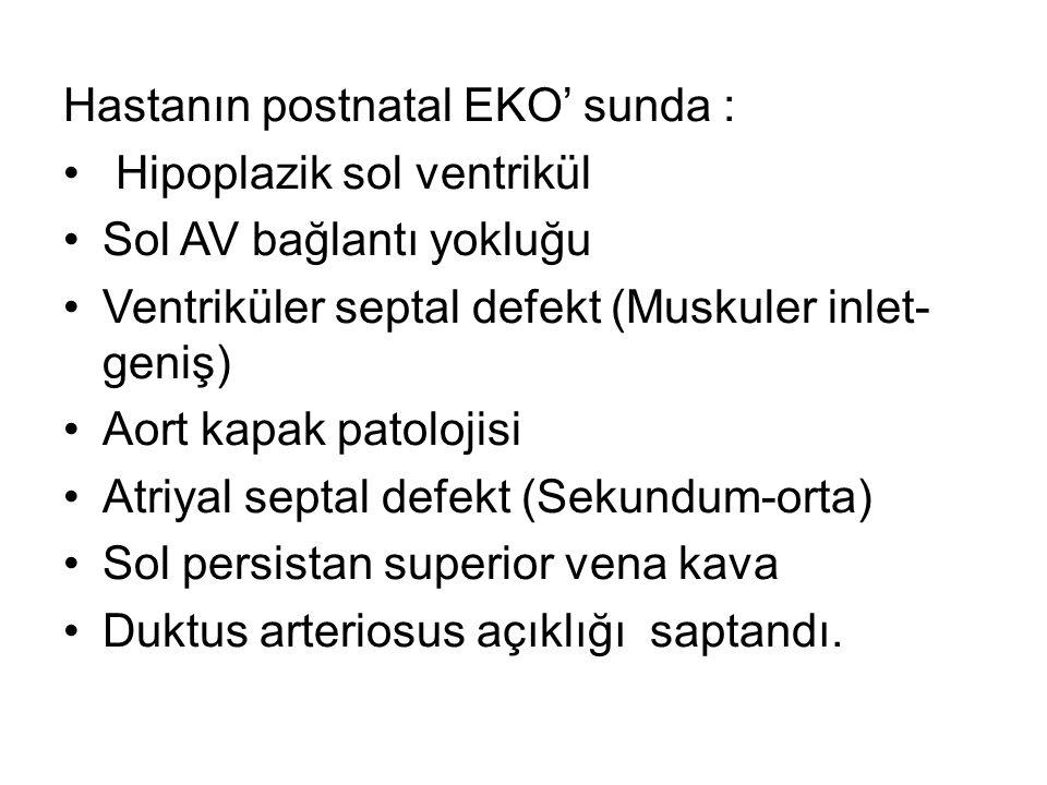 Hastanın postnatal EKO' sunda : Hipoplazik sol ventrikül Sol AV bağlantı yokluğu Ventriküler septal defekt (Muskuler inlet- geniş) Aort kapak patolojisi Atriyal septal defekt (Sekundum-orta) Sol persistan superior vena kava Duktus arteriosus açıklığı saptandı.