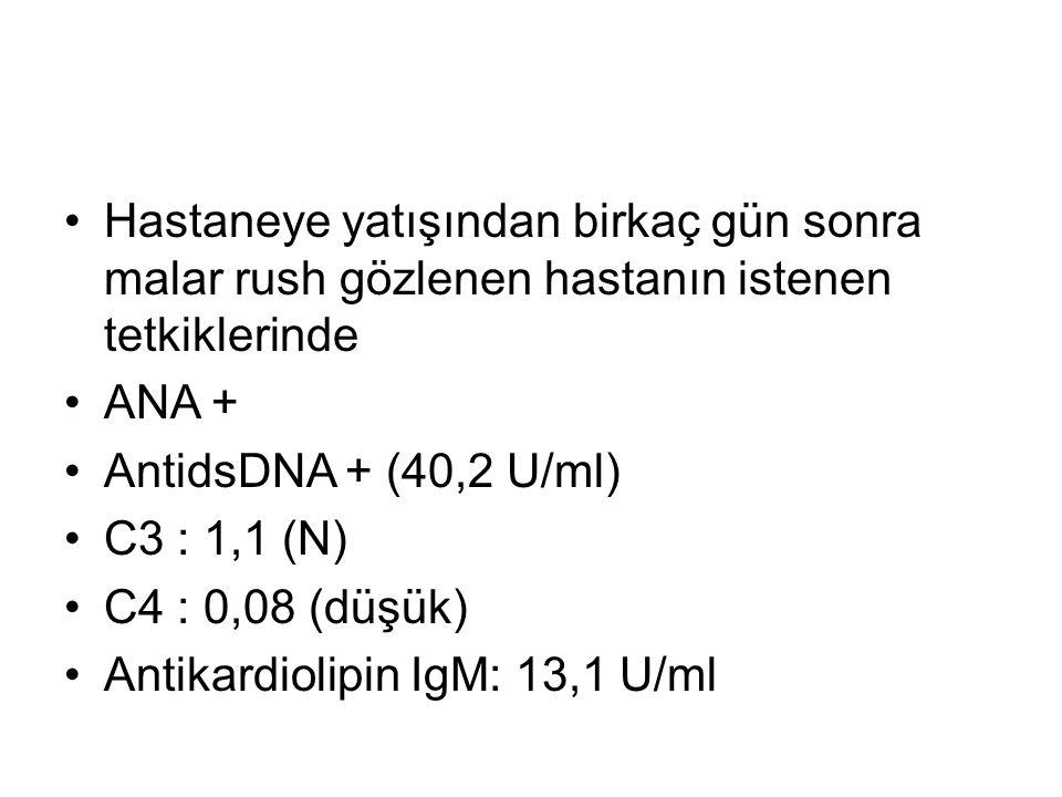 Hastaneye yatışından birkaç gün sonra malar rush gözlenen hastanın istenen tetkiklerinde ANA + AntidsDNA + (40,2 U/ml) C3 : 1,1 (N) C4 : 0,08 (düşük) Antikardiolipin IgM: 13,1 U/ml