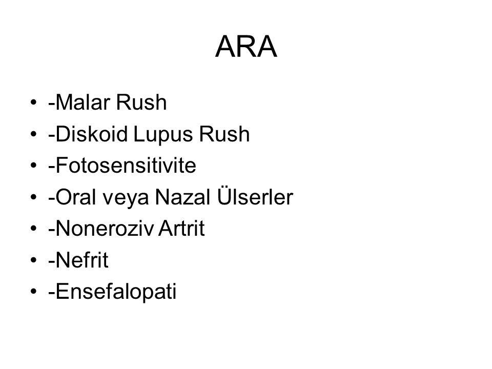 ARA -Malar Rush -Diskoid Lupus Rush -Fotosensitivite -Oral veya Nazal Ülserler -Noneroziv Artrit -Nefrit -Ensefalopati