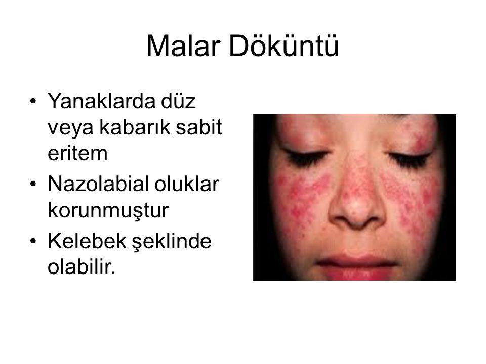 Malar Döküntü Yanaklarda düz veya kabarık sabit eritem Nazolabial oluklar korunmuştur Kelebek şeklinde olabilir.