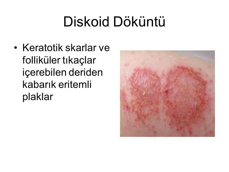 Diskoid Döküntü Keratotik skarlar ve folliküler tıkaçlar içerebilen deriden kabarık eritemli plaklar
