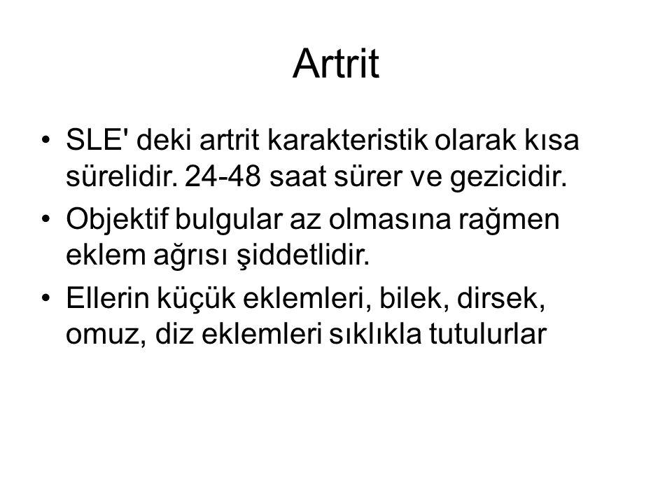 Artrit SLE deki artrit karakteristik olarak kısa sürelidir.