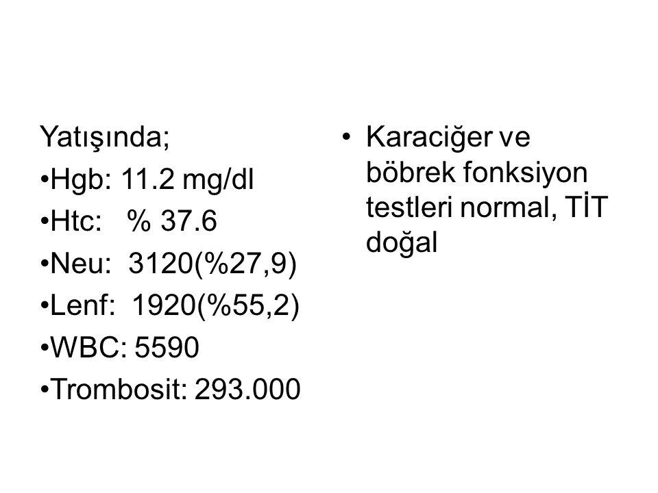 Yatışında; Hgb: 11.2 mg/dl Htc: % 37.6 Neu: 3120(%27,9) Lenf: 1920(%55,2) WBC: 5590 Trombosit: 293.000 Karaciğer ve böbrek fonksiyon testleri normal, TİT doğal
