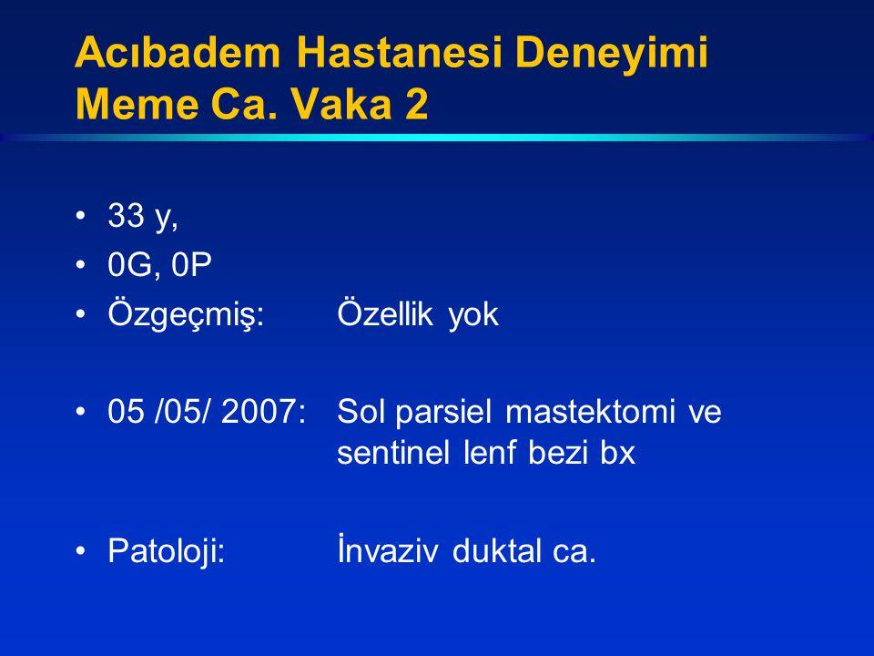 Acıbadem Hastanesi Deneyimi Meme Ca. Vaka 2 33 y, 0G, 0P Özgeçmiş:Özellik yok 05 /05/ 2007:Sol parsiel mastektomi ve sentinel lenf bezi bx Patoloji:İn