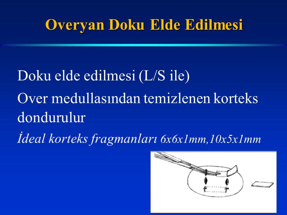 Doku elde edilmesi (L/S ile) Over medullasından temizlenen korteks dondurulur İdeal korteks fragmanları 6x6x1mm,10x5x1mm Overyan Doku Elde Edilmesi