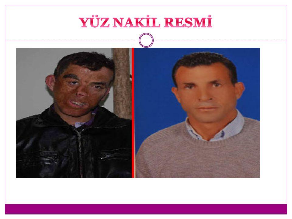 İlk yüz nakli ameliyatı yapıldı. Yayın tarihi : 21.01.2012 İlk yüz nakli ameliyatı yapıldı. Yayın tarihi : 21.01.2012