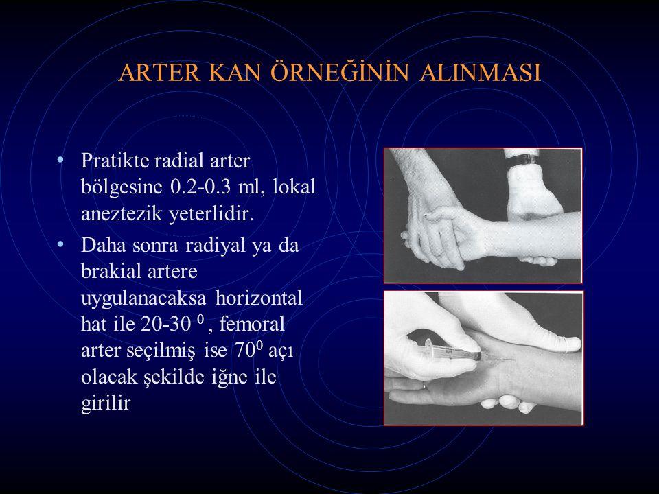 ARTER KAN ÖRNEĞİNİN ALINMASI Pratikte radial arter bölgesine 0.2-0.3 ml, lokal aneztezik yeterlidir. Daha sonra radiyal ya da brakial artere uygulanac