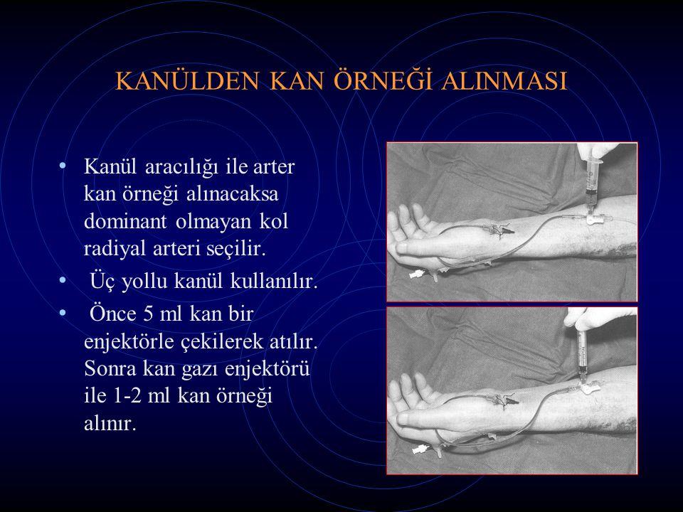 KANÜLDEN KAN ÖRNEĞİ ALINMASI Kanül aracılığı ile arter kan örneği alınacaksa dominant olmayan kol radiyal arteri seçilir. Üç yollu kanül kullanılır. Ö