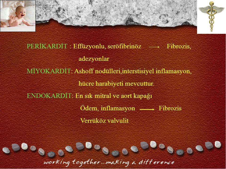 PERİKARDİT : Effüzyonlu, seröfibrinöz Fibrozis, adezyonlar MİYOKARDİT: Ashoff nodülleri,interstisiyel inflamasyon, hücre harabiyeti mevcuttur.