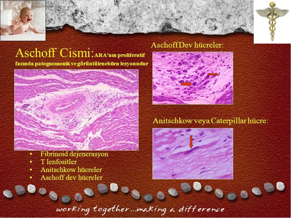 Aschoff Cismi: ARA'nın proliferatif fazında patognomonik ve görüntülenebilen lezyonudur Aschoff Dev hücreler: Fibrinoid dejenerasyon T lenfositler Anitschkow hücreler Aschoff dev hücreler Anitschkow veya Caterpillar hücre: