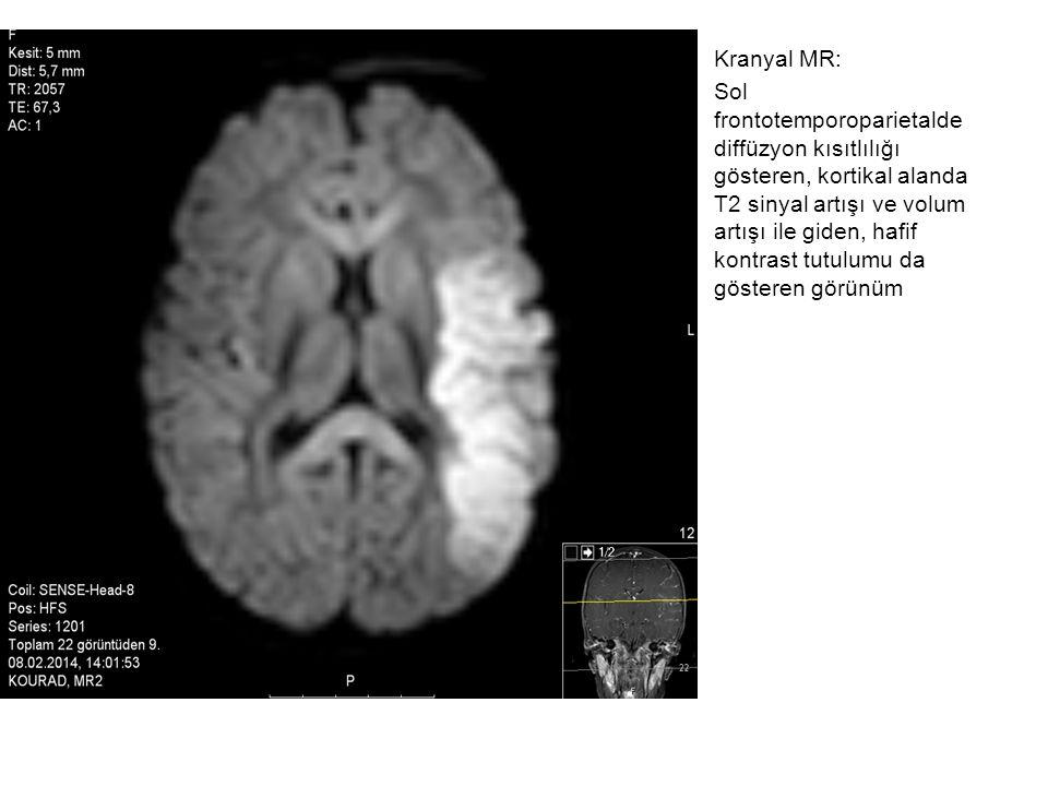 Kranyal MR: Sol frontotemporoparietalde diffüzyon kısıtlılığı gösteren, kortikal alanda T2 sinyal artışı ve volum artışı ile giden, hafif kontrast tutulumu da gösteren görünüm