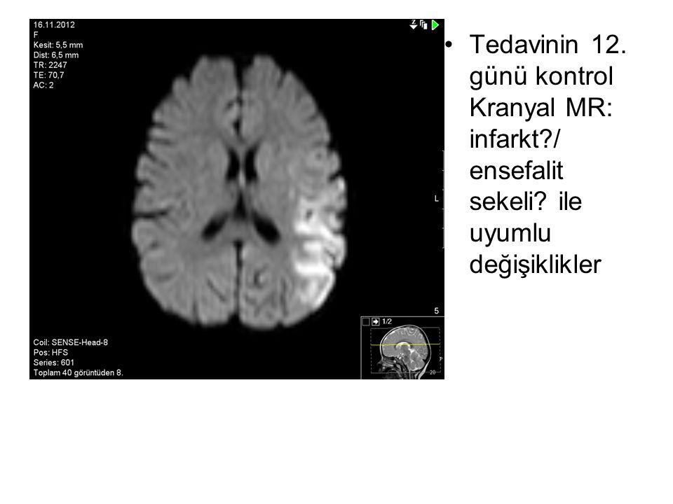 Tedavinin 12. günü kontrol Kranyal MR: infarkt?/ ensefalit sekeli? ile uyumlu değişiklikler