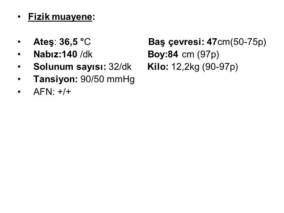 Fizik muayene: Ateş: 36,5 °C Baş çevresi: 47cm(50-75p) Nabız:140 /dk Boy:84 cm (97p) Solunum sayısı: 32/dk Kilo: 12,2kg (90-97p) Tansiyon: 90/50 mmHg AFN: +/+
