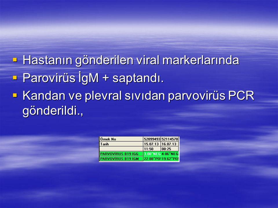  Hastanın gönderilen viral markerlarında  Parovirüs İgM + saptandı.  Kandan ve plevral sıvıdan parvovirüs PCR gönderildi.,