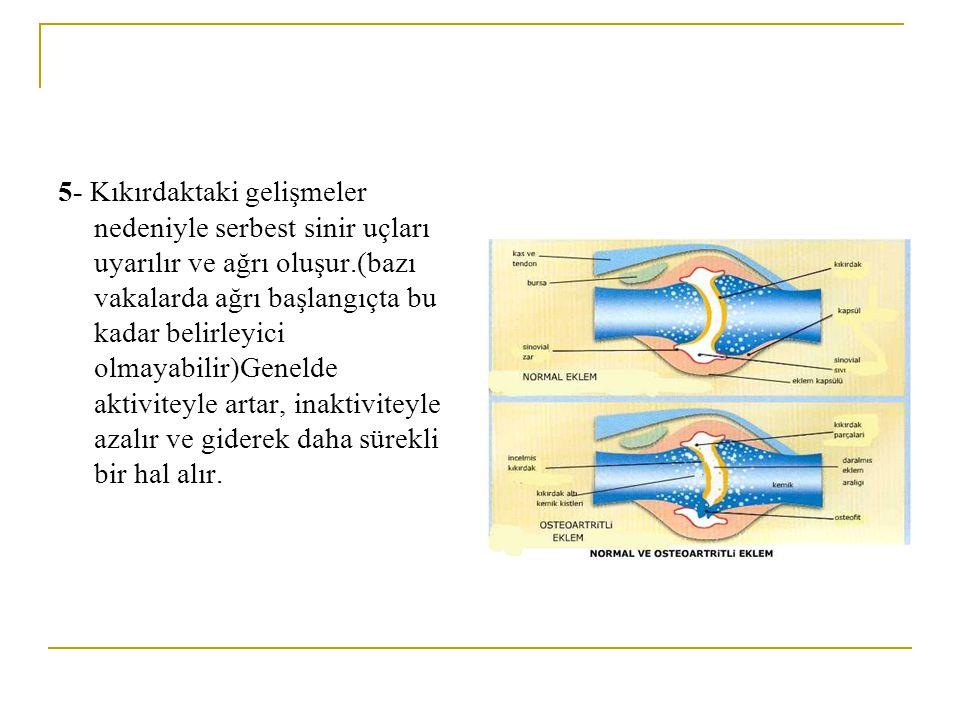 4-Sıvı artışı ve şişliğin etkisi ile eklem kapsülüne bir baskı olur ve bu sekonder olarak kapsülün dolaşımını etkiler. Sürtünme katsayısı artar ve ekl