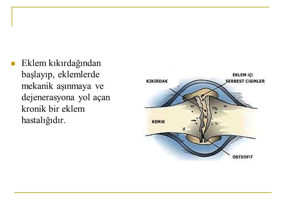 2-Yaşlılıkla birlikte difüzyonla beslenen kıkırdak dokunun beslenmesi bozulur ve hassaslaşan ve yapısı bozulan kıkırdaktan bazı parçalar eklem aralığına düşer.